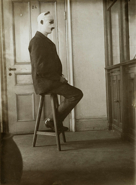 Från utställningen AgNO3 i Landskrona: The Svedberg, nobelpristagare i kemi 1926, efter en eterexplosion i laboratoriet.